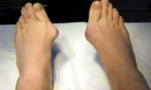 Как избавиться от косточек на ногах.