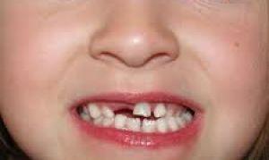 Как следить за зубами ребенка