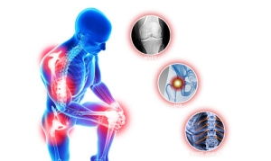 Лечение артроза по методике доктора Неумывакина