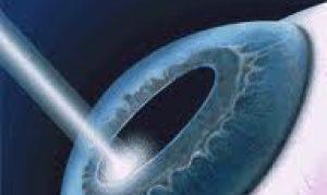 Как проводится лазерная коррекция зрения