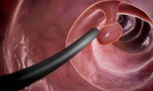 Эндоскопическое удаление полипов желудка