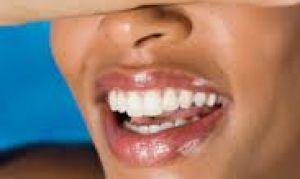 Как добиться «голливудской» улыбки