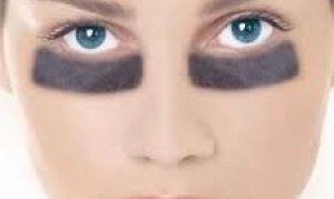 Как избавиться от кругов под глазами