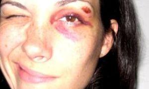 Как уменьшить синяк под глазом