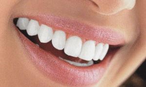 Световые пломбы для зубов: преимущества и недостатки