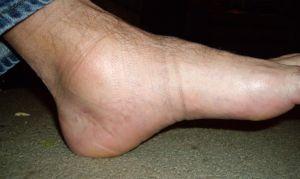 Как избавиться от отеков ног