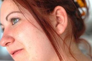 Покраснение кожи у женщин