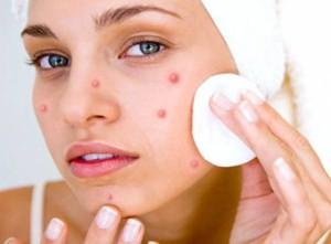 Лечение прыщей на лице