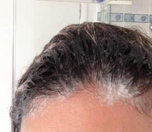 Причина перхоти - плохо промытые от шампуня волосы